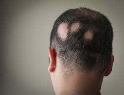 Homeopathy Medicine for Alopecia & Bald Patches