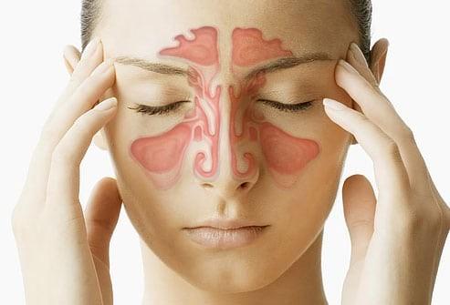 Homeopathy Medicine for Sinus Headache