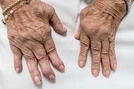 Homeopathy Medicine for Arthritis