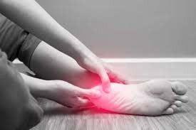 Homeopathy Medicine for Heel Pain