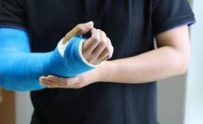 Homeopathy Medicine for Injuries & Fractures