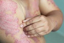 Homeopathy Medicine for Psoriasis