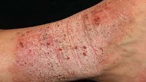 Homeopathy Medicine for Eczema