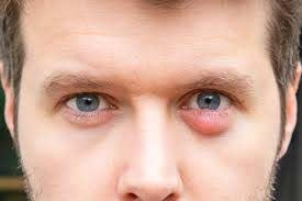 Homeopathy Medicine for Styes and Chalazion