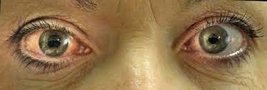 Homeopathy Medicine for Glaucoma