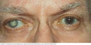 Homeopathy Medicine for Cataract