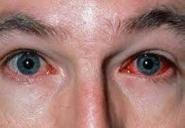 Homeopathy Medicine for Conjunctivitis
