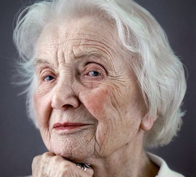 Homeopathy Medicine for Wrinkles & Aging
